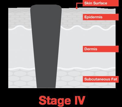 Stage 4 Melanoma - Melanoma Research Alliance